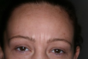 botox hertfordshire before