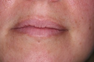 dermal fillers hertfordshire